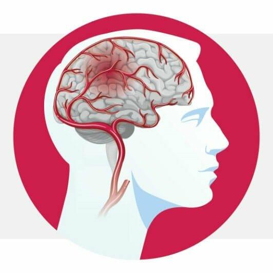 Cerebrolysin against stroke